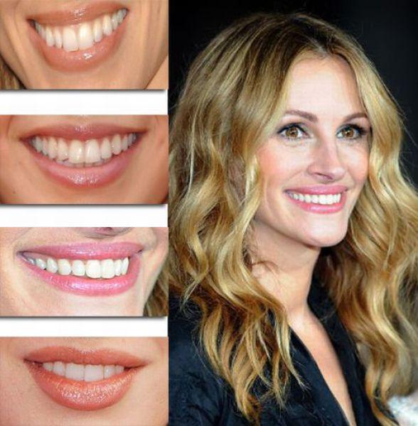 Utah's #1 Teeth Whiteners | Celebrity Smiles