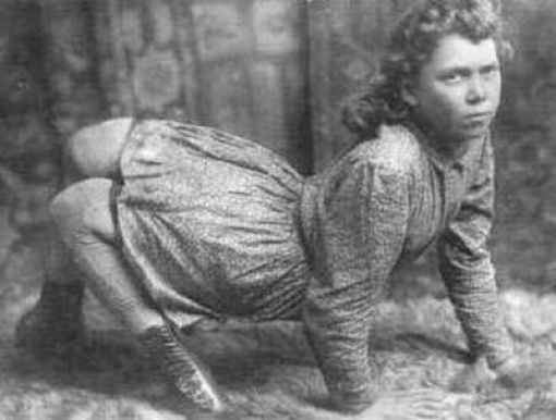 Circus Freaks from Back Then (25 pics)