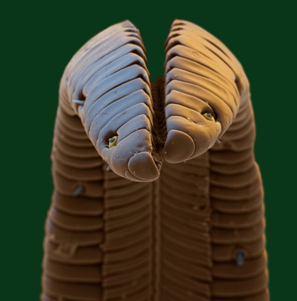 Amazing Scanning Electron Microscope Pictures