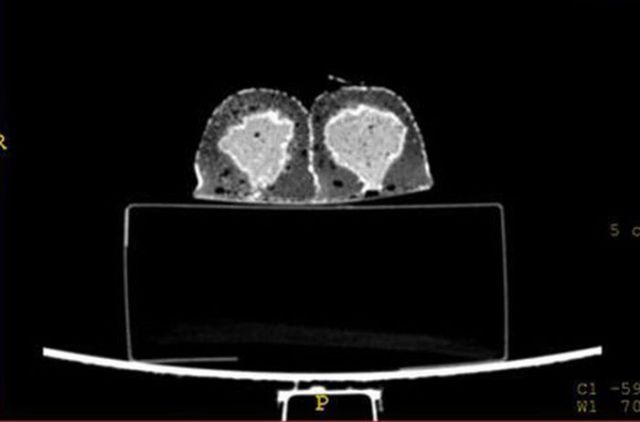 A CT Scan of a Twinkie (6 pics)