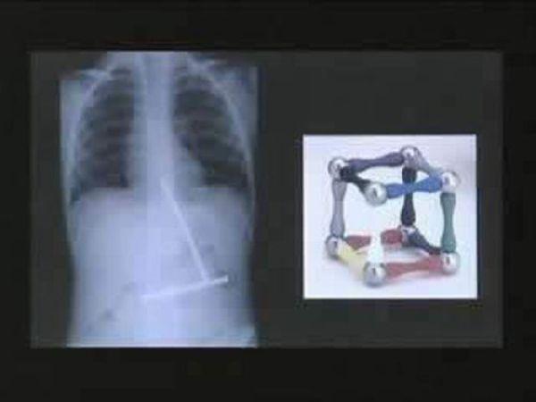 Amazing X Rays