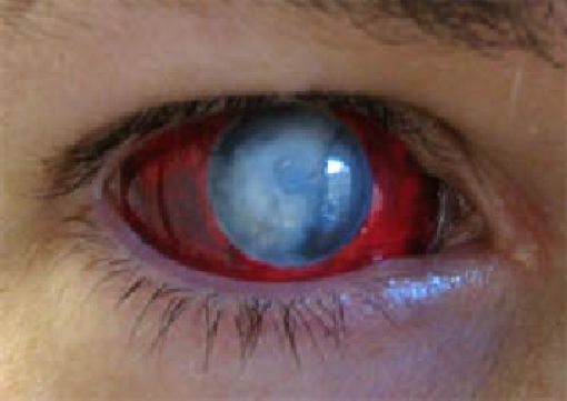 Eerie Eyeball Covers