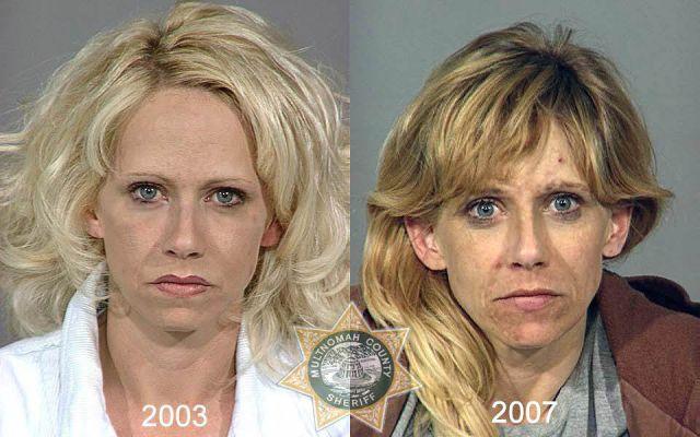 Shocking Mug Shots of Meth Addicts