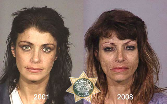 Shocking Mug Shots of Meth Addicts