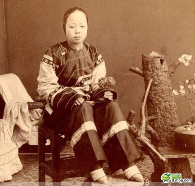 Scary Chinese Tradition Makes Deformed Feet