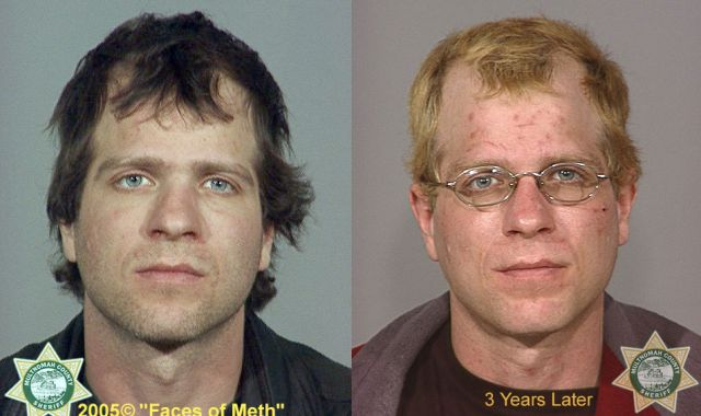 Meth Addicts: Before and After