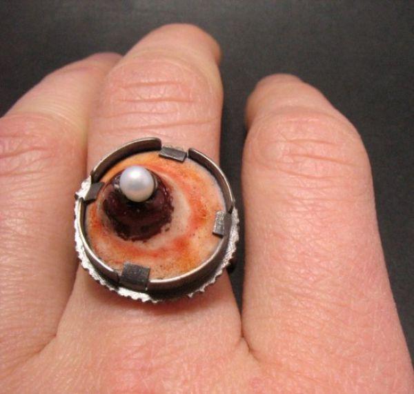 Uncanny Factoid: Pimple Ring