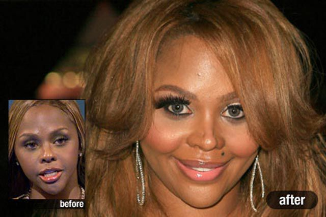 Plastic Surgery on the Red Carpet