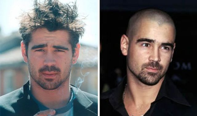 How Do You Like Them Best: Bald or with Hair?