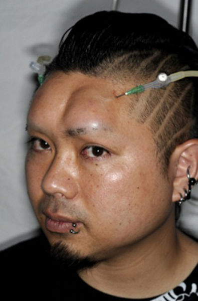 Disturbing Forehead Modifications by Japanese Kids