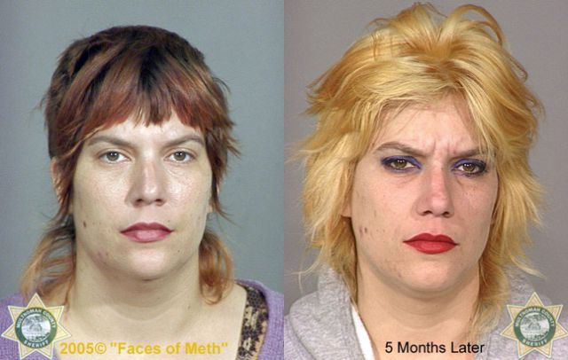 The Real Faces Of Meth Addiction - Celebrity Gossip POP
