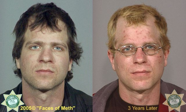 Faces of Meth