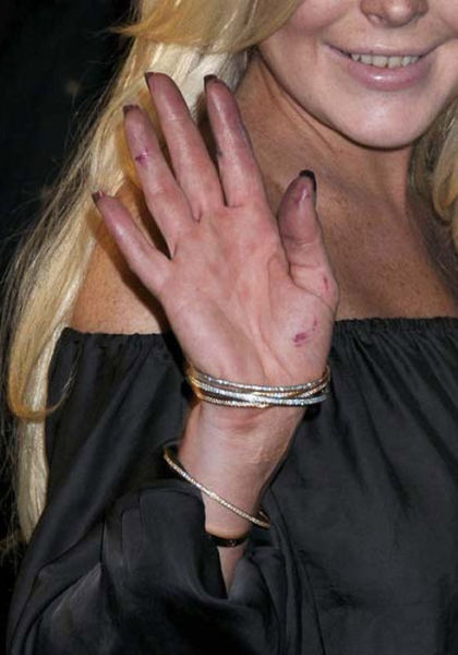What Is Happening to Lindsay Lohan?