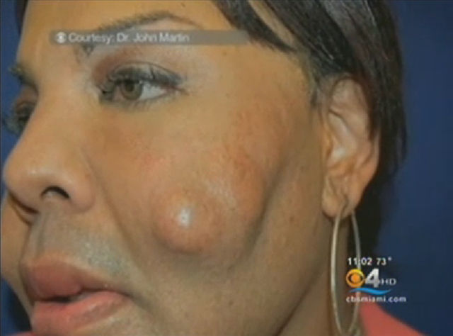Proof That Injecting Cement Into A Face Is a Bad Idea