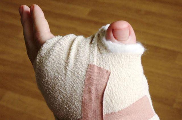 Unusual Thumb
