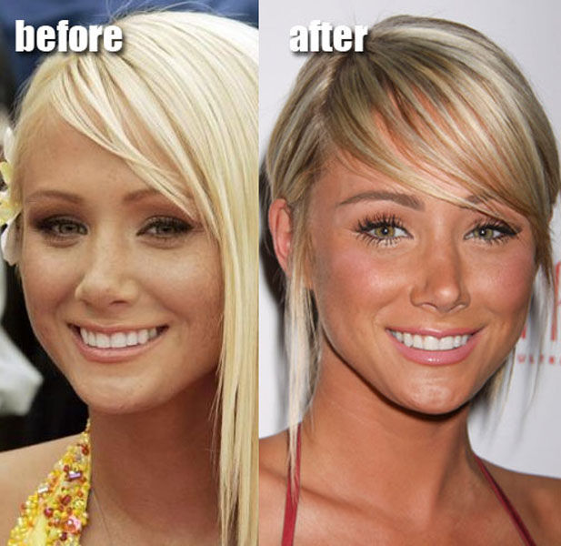 Celebrity Plastic Surgery Before Amp After 56 Pics