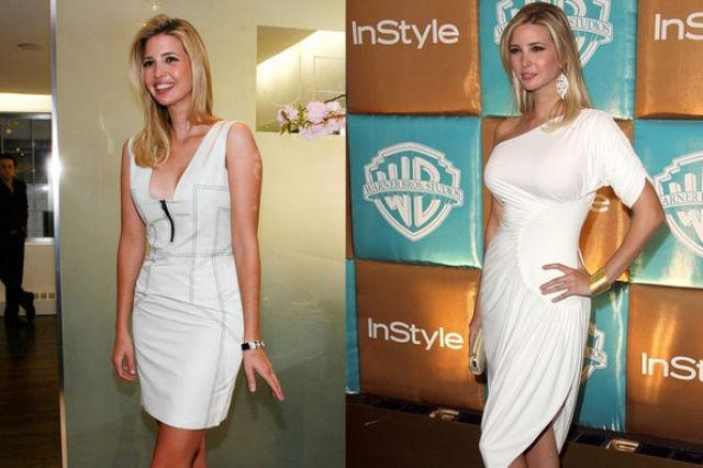 Celebrity Plastic Surgery Before  After 56 Pics - Izismilecom-6574
