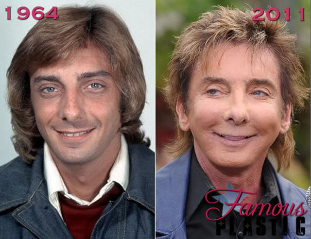 Male Celebrity Plastic Surgery Before And After