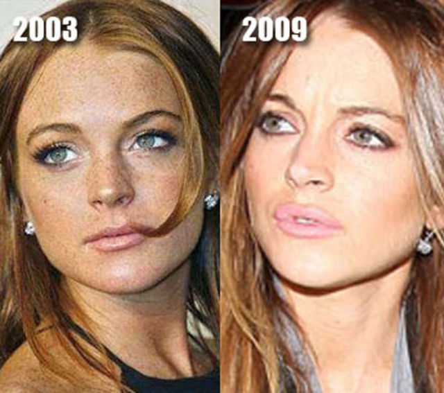 Best Before And After Plastic Surgery Photos - celebrity ...