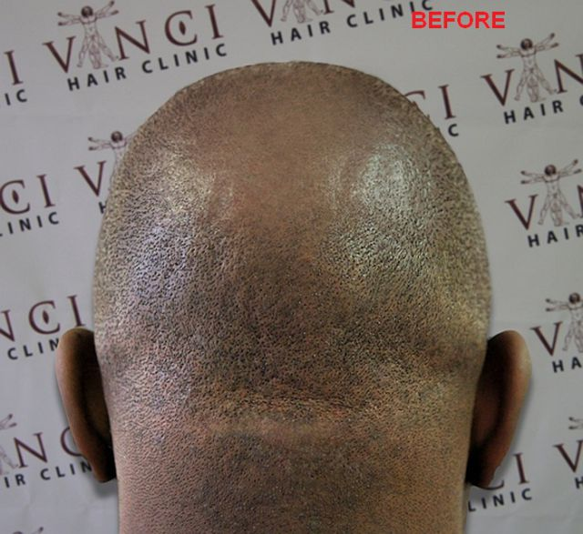 The Best Way to Fight Balding