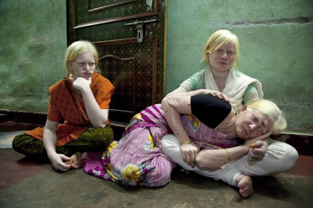The Largest Albino Family in the World
