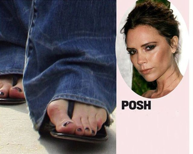 Attractive Celebs Have Completely Unattractive Feet