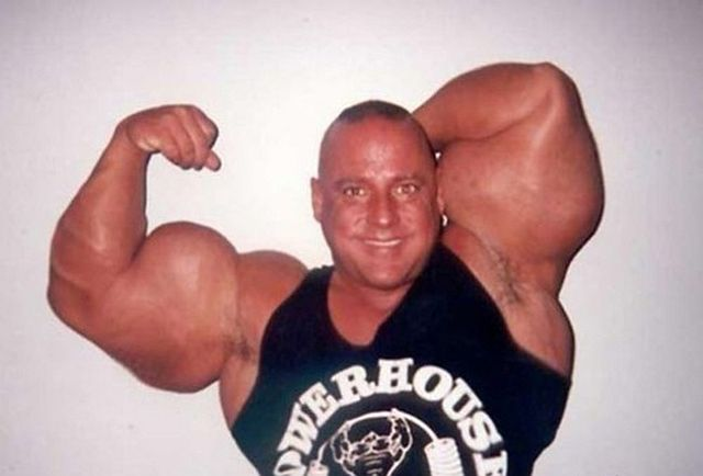 Another Synthol Victim