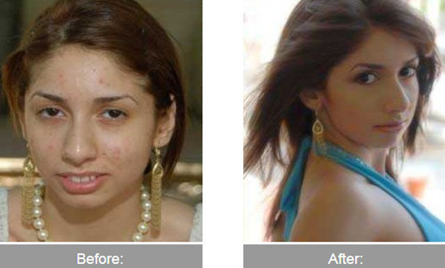 Before and After the Transformation. Part 2