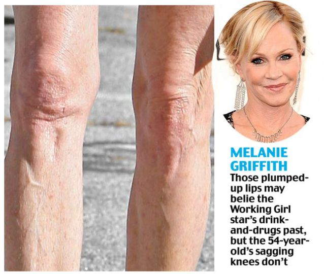 Saggy Knees Show Celebs True Age