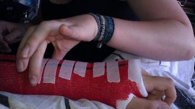 Spiderman Cast for a Broken Arm
