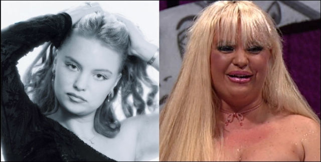 When Plastic Surgery Goes Really Wrong