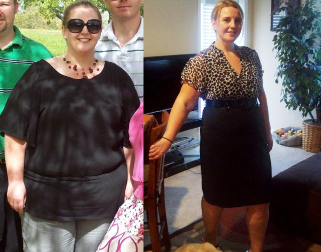 Amazing Weight Loss: Before and After