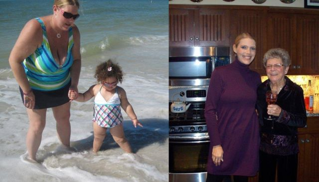 Amazing Weight Loss: Before and After. Part 2