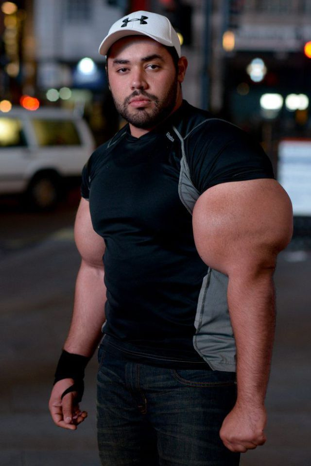 Gregg Valentino , a man with the world?s largest biceps, has had his
