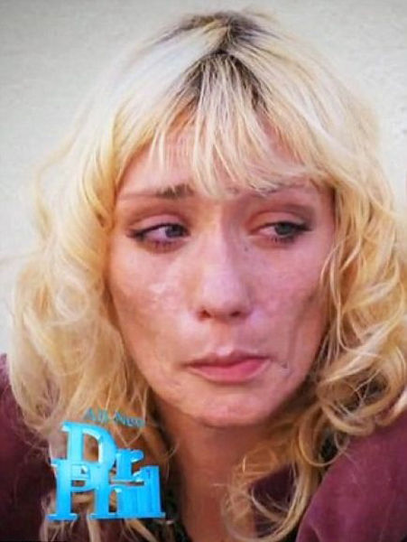 Promising American Model Turns Into Meth Junkie