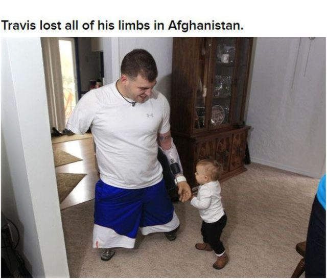 A Courageous American War Hero With No Limbs
