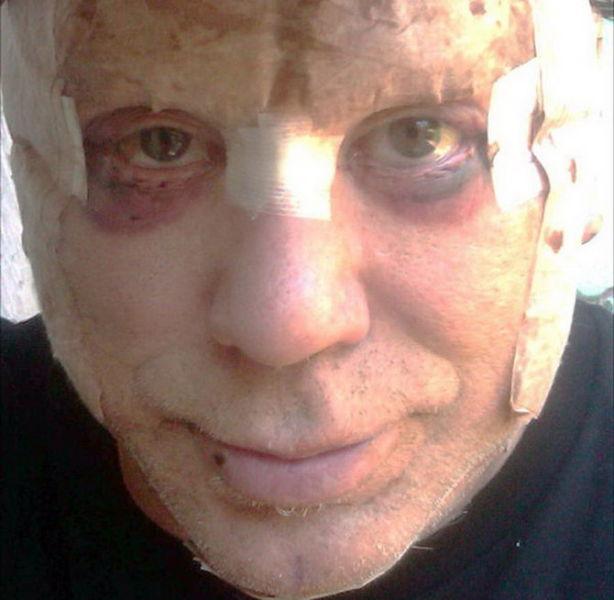 Plastic Surgery Addict Mickey Rourke 7 Pics Izismile Com