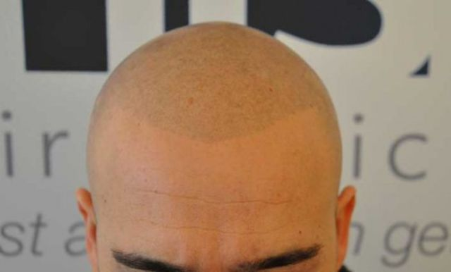 The 'No Hair' Solution!