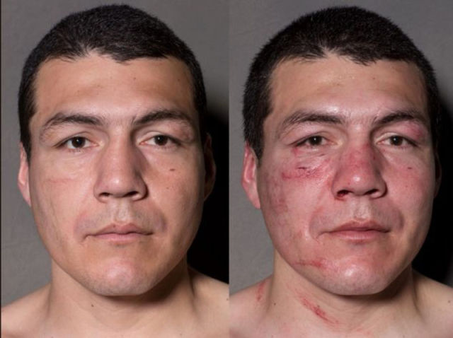 A Boxer's Face Before and After Taking a Few Punches (11