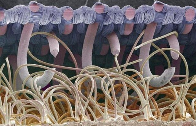 Things Look Strange Under a Microscope