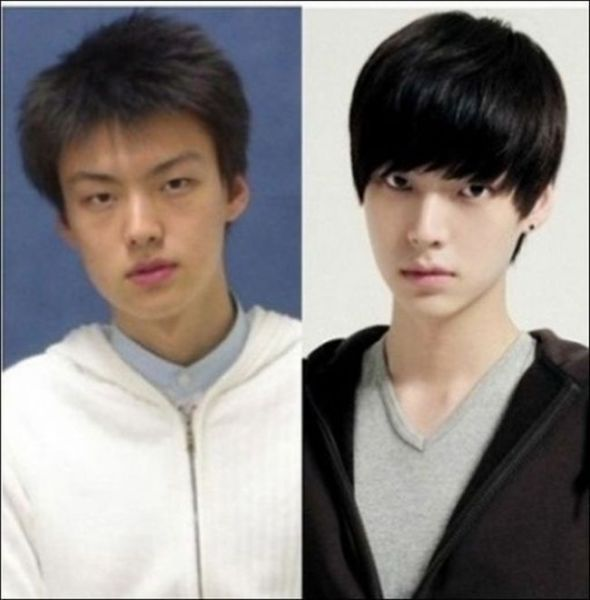Before And After Photos Of Korean Plastic Surgery 30 Pics