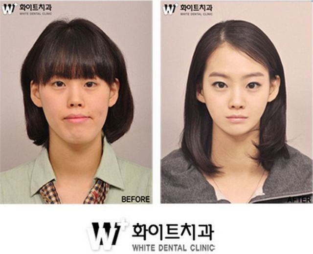 Before and After Photos of Korean Plastic Surgery