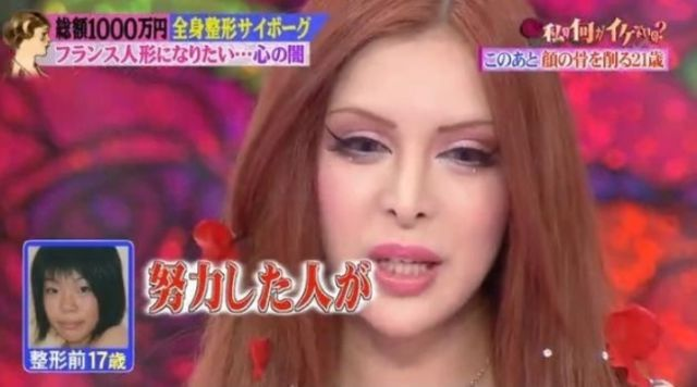 Plastic Surgery Transforms Japanese Model into a Living French Doll