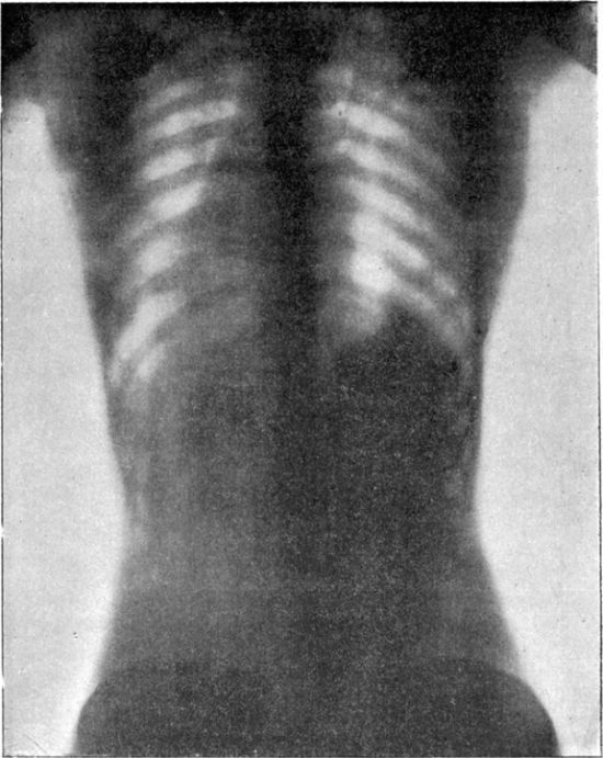 X-Rays Show the Real Effects of a Corset on a Woman's Body