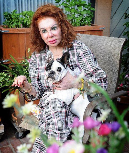A Tragic Victim of Plastic Surgery