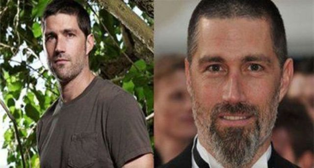 The 'Lost' Cast Before and After the Series