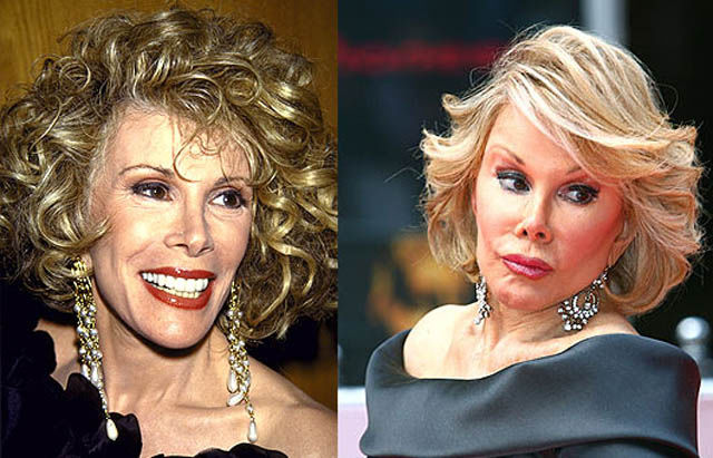 If You're Thinking about Having Plastic Surgery. Think Again!