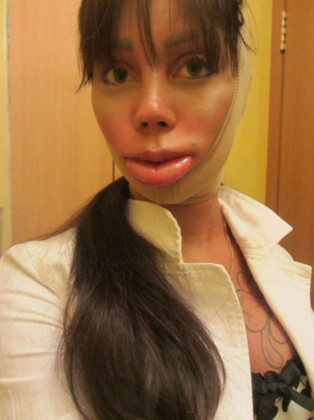 Another Example of Plastic Surgery Overkill