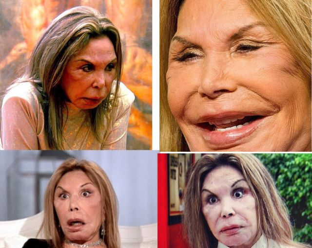 Plastic Surgery Addict Is Almost Unrecognisable as a Former Beauty