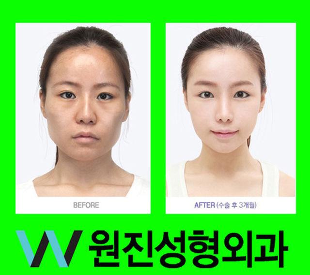 До и после корейской пластической